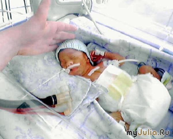 фото недоношенные дети 2 кг